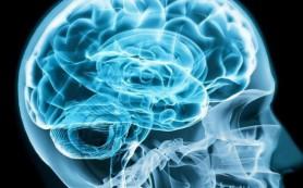 Размер головного мозга не влияет на уровень умственных способностей