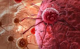 Ученые из Москвы помогут найти альтернативу раковой терапии