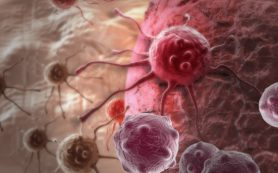 Ученые выяснили, что помогает раковым опухолям расти