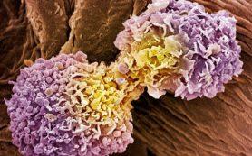 Карри помогает замедлить рост агрессивных опухолей груди