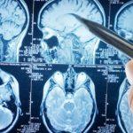 Когнитивные способности связаны с наличием травм головы у человека