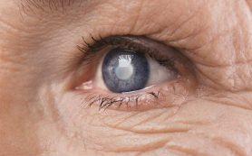 Хирургическое лечение катаракты снижает риск смерти на 60%