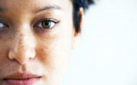 Как избавиться от пигментных пятен во время беременности?