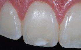 Почему на зубах появляются пятна