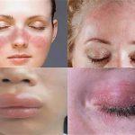 Аллергия - причины и симптомы