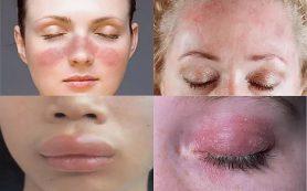 Аллергия — причины и симптомы