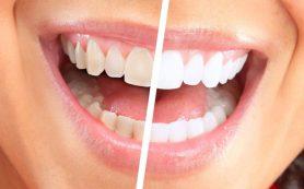 Процедура ZOOM для отбеливания зубов