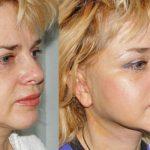 Как избавиться от брылей на лице