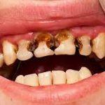 Что будет, если не чистить зубы сутки? А... месяц?