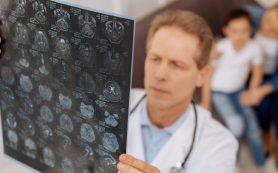 Исследование описало частоту случайных находок при МРТ мозга у детей