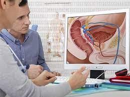 Ученые не нашли связи между увеличением простаты и раком