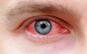 Устраняем симптомы «сухого глаза»